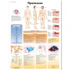 """Медицинский плакат """"Пролежни"""""""